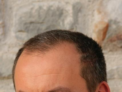 Alessandro Mesini
